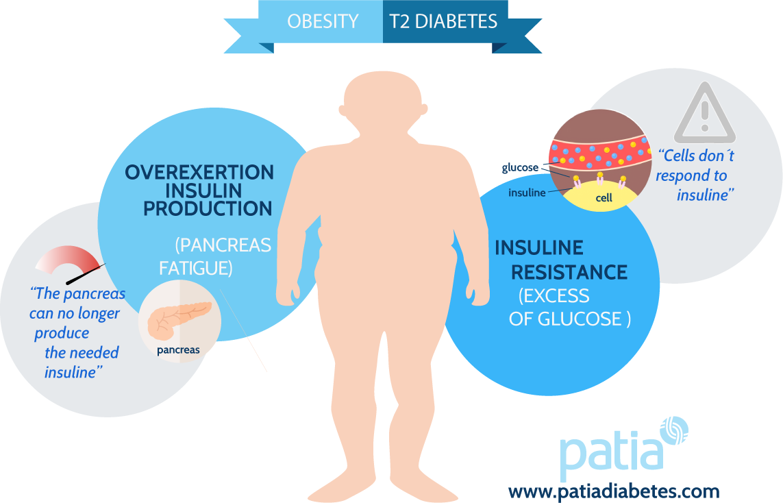 obesity type 2 diabetes