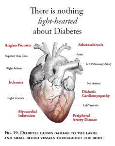infarto agudo do miocardio sintomas de diabetes