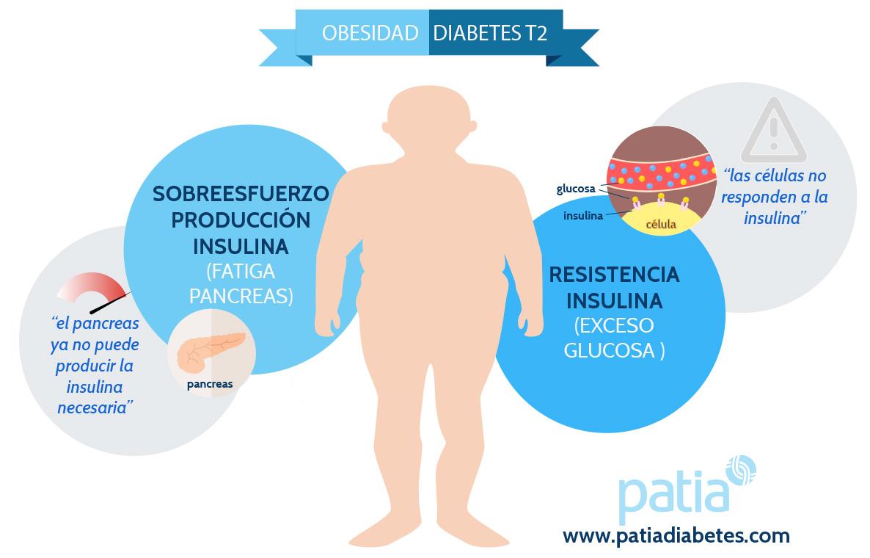 ¿Qué son las células de diabetes tipo 2?